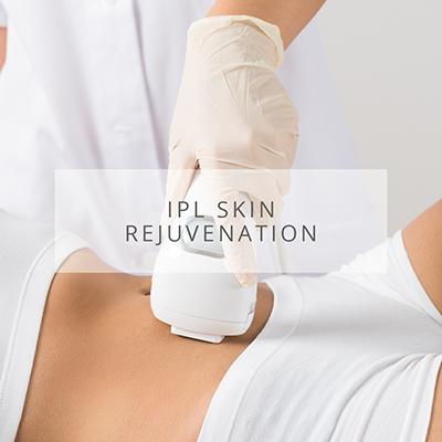 Elite Skin IPL Skin Rejuvenation
